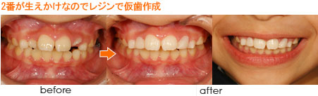 左上2番が生えかけなのでレジンで仮歯作成