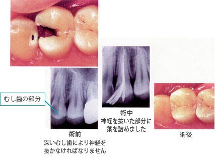 【C3】大きく神経まで到達している虫歯