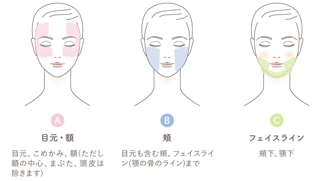 施術可能な箇所 目元・こめかみ・額・頬・フェイスライン・頬下・顎下
