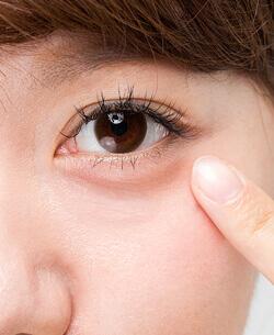 下眼瞼脱脂法