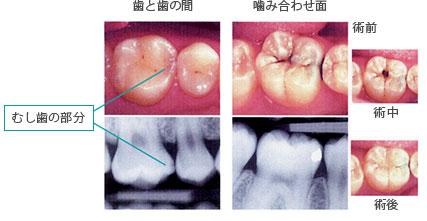 【C1】小さい虫歯