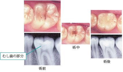 【C2】比較的大きい虫歯