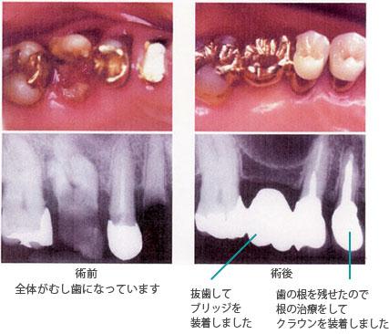 【C4】すでに神経を失った歯の虫歯
